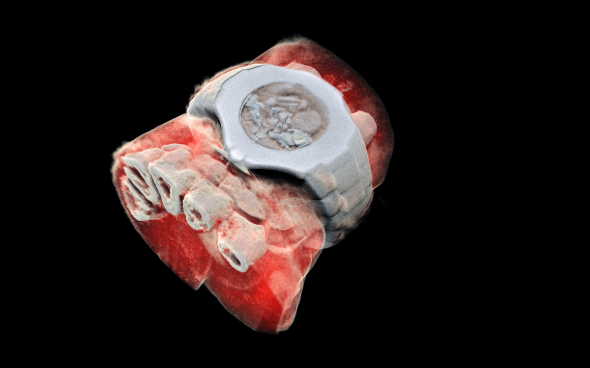 A 3D image of a wrist with a watch, showing part of the finger bones in white and soft tissue in red