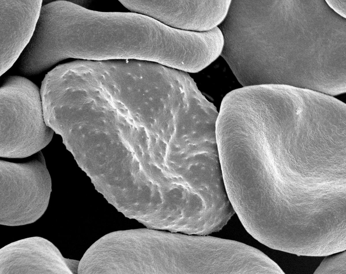 Red blood cell infected with malaria