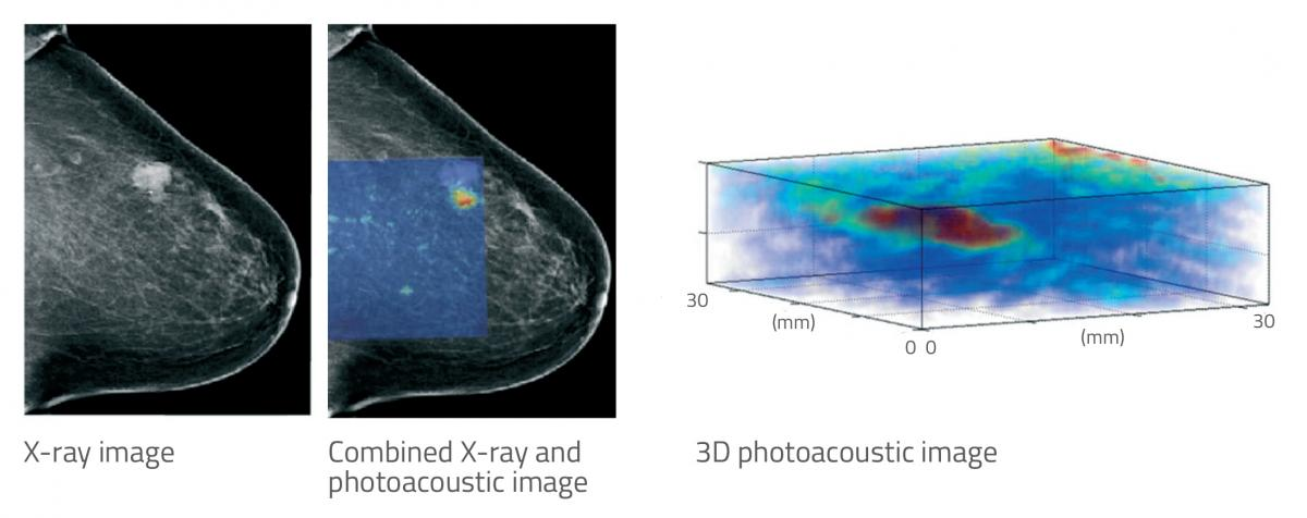 Figure 2: Comparison between X-ray and photoacoustic tomography for breast tumour imaging.